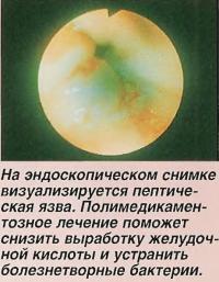 На эндоскопическом снимке визуализируется пептическая язва