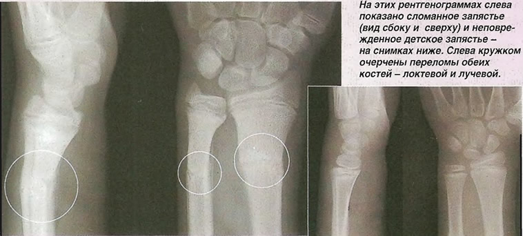 На этих рентгенограммах слева показано сломанное запястье