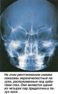 На этом рентгеновском снимке показаны верхнечелюстные пазухи
