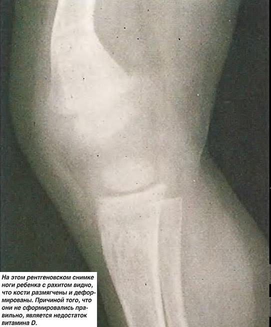 На этом снимке ноги с рахитом видно, что кости размягчены и деформированы