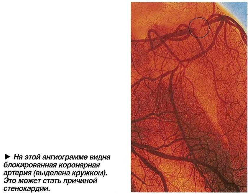 На этой ангиограмме видна блокированная коронарная артерия
