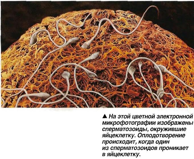 На этой цветной электронной микрофотографии изображены сперматозоиды, окружившие яйцеклетку