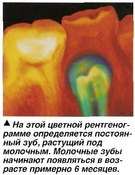 На этой цветной рентгенограмме определяется постоянный зуб, растущий под молочным