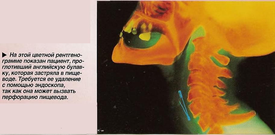 На этой цветной рентгенограмме показан пациент, про глотивший английскую булавку