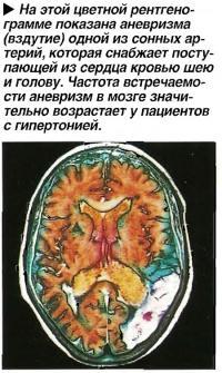 На этой цветной рентгенограмме показана аневризма (вздутие) одной из сонных артерий