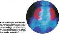 На этой цветной рентгенограмме показано обширное менингомиелоцеле