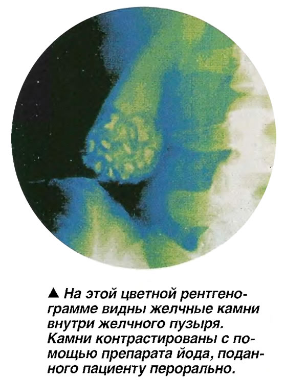 На этой цветной рентгенограмме видны желчные камни внутри желчного пузыря