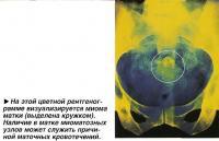На этой цветной рентгенограмме визуализируется миома матки