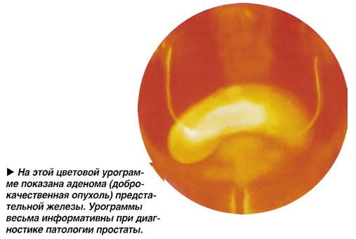 На этой цветовой урограмме показана аденома предстательной железы