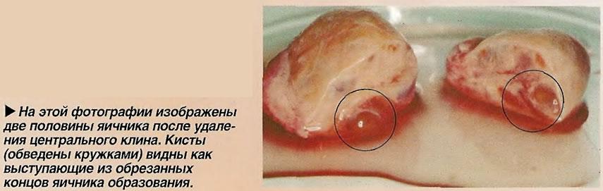 На этой фотографии изображены две половины яичника после удаления центрального клина