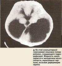 На этой компьютерной томограмме показана голова ребенка, страдающего гидроцефалией