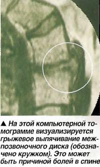 На этой компьютерной томограмме визуализируется грыжевое выпячивание межпозвоночного диска