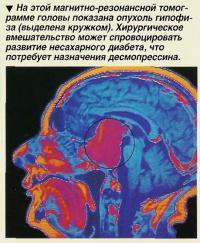 На этой магнитно-резонансной томограмме головы показана опухоль гипофиза