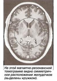 На этой магнитно-резонансной томограмме видно симметричное расположение желудочков