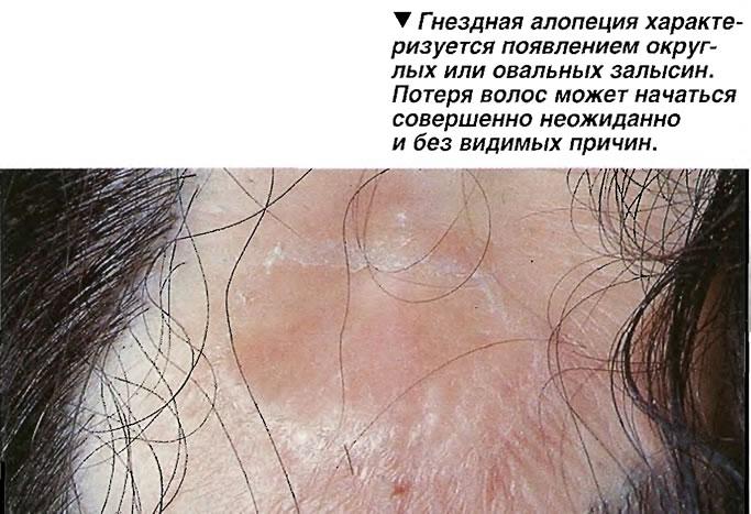 На этой микрофотографии корня волоса показан волосяной фолликул