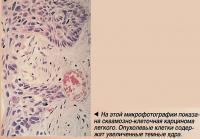 На этой микрофотографии показана сквамозно-клеточная карцинома легкого