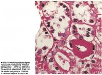 На этой микрофотографии показано утолщение стенки артериолы