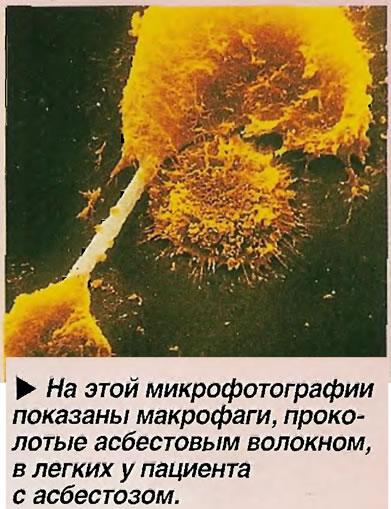 На этой микрофотографии показаны макрофаги, проколотые асбестовым волокном