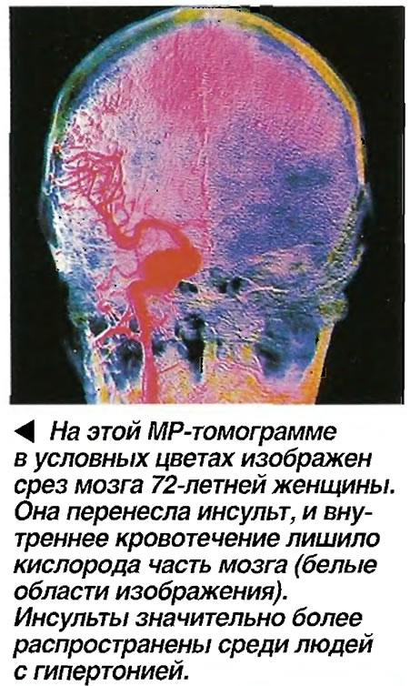 На этой МР-томограмме в условных цветах изображен срез мозга 72-летней женщины