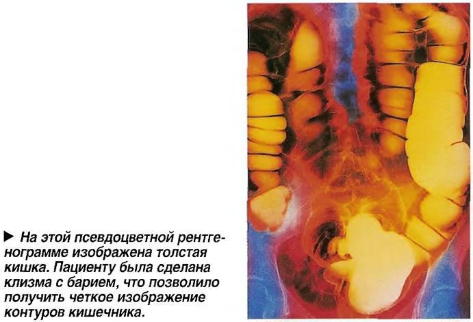 На этой псевдоцветной рентгенограмме изображена толстая кишка.