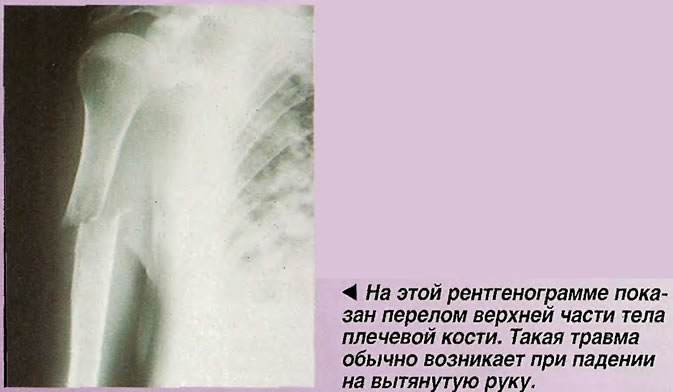 На этой рентгенограмме показан перелом верхней части тела плечевой кости
