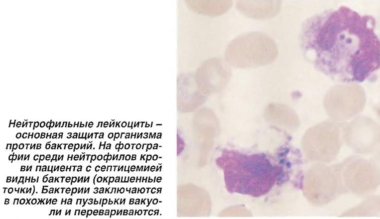 На фотографии среди нейтрофилов крови пациента с септицемией видны бактерии