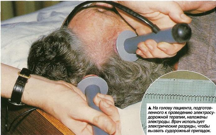 На голову пациента, подготовленного к проведению электросудорожной терапии, наложены электроды