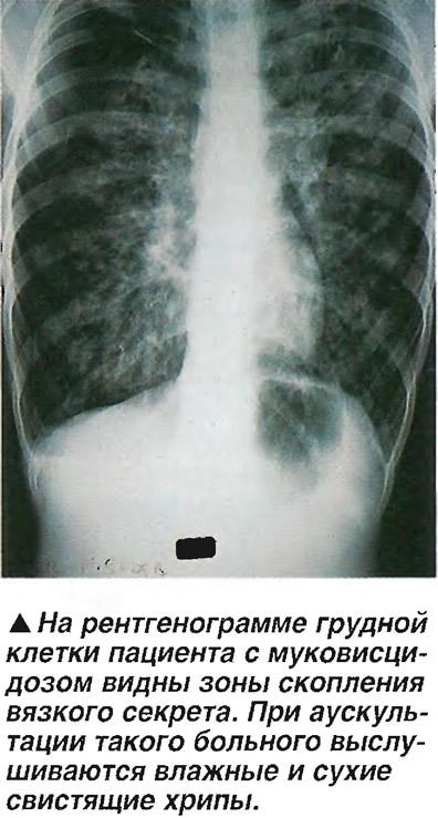 На грудной клетке с муковисцидозом видны зоны скопления вязкого секрета