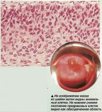 На изображении мазка из шейки матки видны аномальные клетки