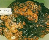 На извлеченном мозге справа виден ушиб с размозжением ткани