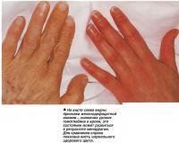 На кисти слева видны признаки железодефицитной анемии