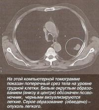 На компьютерной томограмме показан поперечный срез тела на уровне грудной клетки