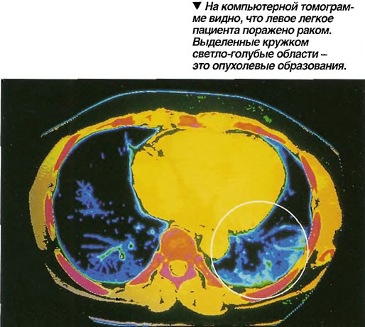 На компьютерной томограмме видно, что левое легкое пациента поражено раком