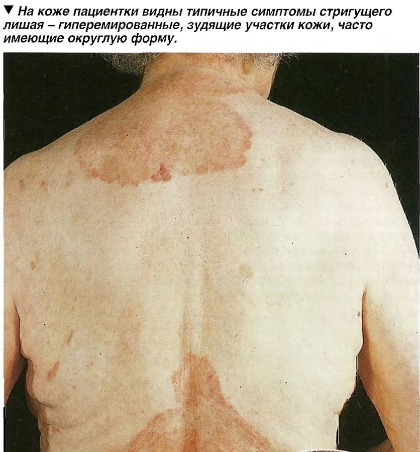 На коже пациентки видны типичные симптомы стригущего лишая