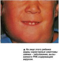На лице этого ребенка видны характерные симптомы свинки