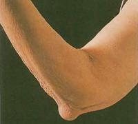 На локте пациента пожилого возраста сформировался характерный ревматический узелок