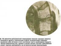 На магнитно-резонансной томограмме показан пролапс межпозвонкового диска