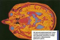 На магнитнорезонансной томограмме визуализируется крупная аденома