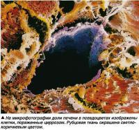 На микрофотографии доли печени в псевдоцветах изображены клетки, пораженные циррозом
