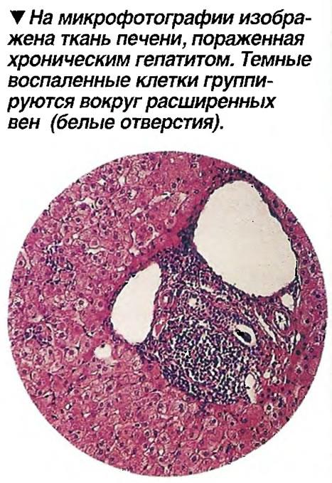 На микрофотографии изображена ткань печени, пораженная хроническим гепатитом