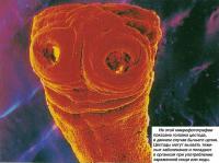 На микрофотографии показана головка цестода, в данном случае бычьего цепня