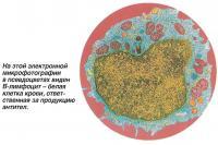 На микрофотографии в псевдоцветах виден В-лимфоцит - белая клетка крови