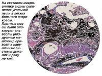 На микроснимке видны скопления угольной пыли в легких больного антракозом
