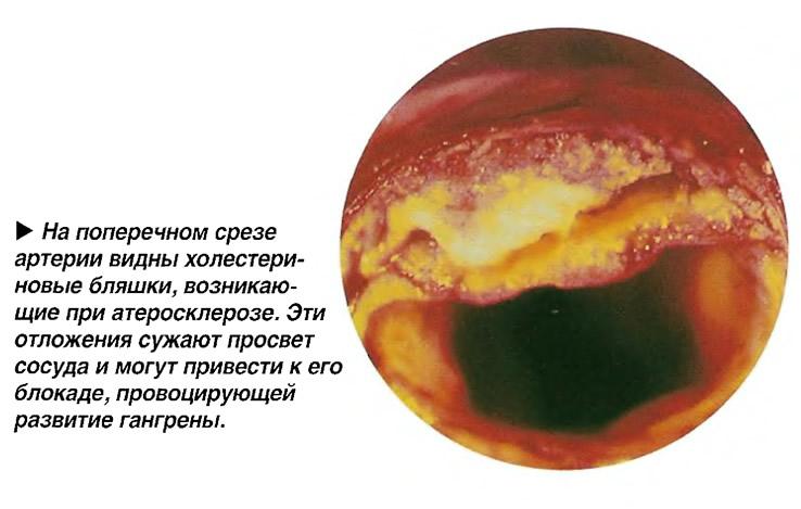 На поперечном срезе артерии видны холестериновые бляшки