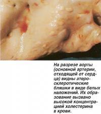 На разрезе аорты видны атеросклеротические бляшки