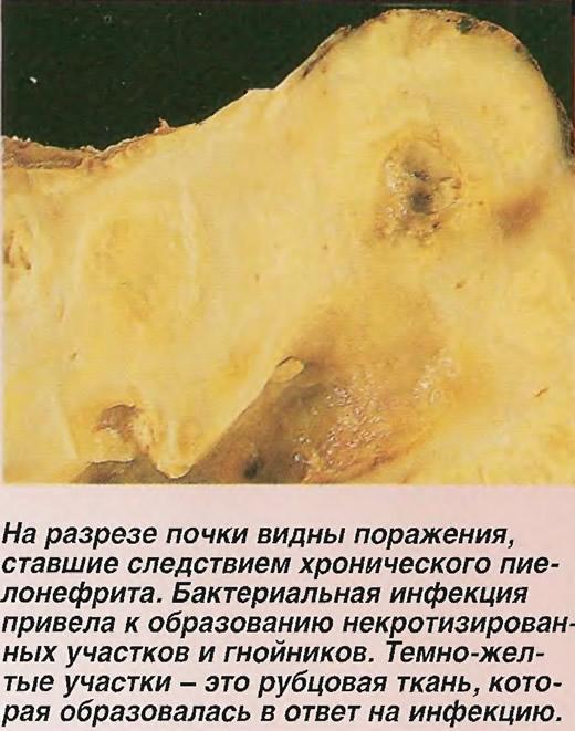 На разрезе почки видны поражения, ставшие следствием хронического пиелонефрита