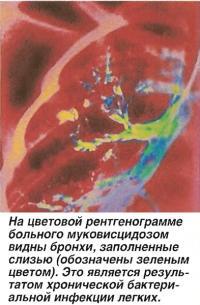 На рентгенограмме больного муковисцидозом видны бронхи, заполненные слизью