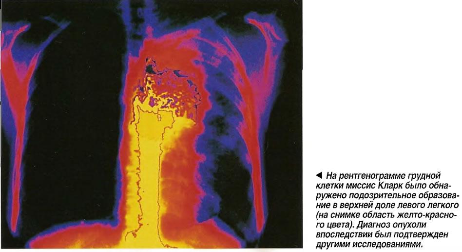 На рентгенограмме грудной клетки миссис Кларк было обнаружено подозрительное образование