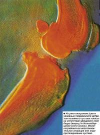 На рентгенограмме коленного сустава показано отсутствие хрящевого слоя бедра