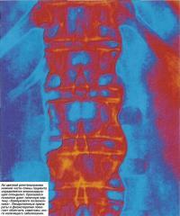 На рентгенограмме нижней части спины определяется анкилозирующий спондилит